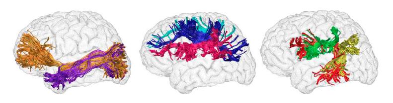 Figuras esquemáticas representativas das estruturas neuronais envolvidas no processo de leitura.